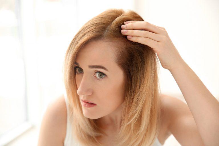 woman-hair-loss